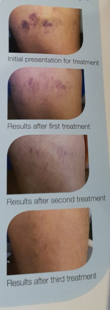 sclerotherapy results spider veins